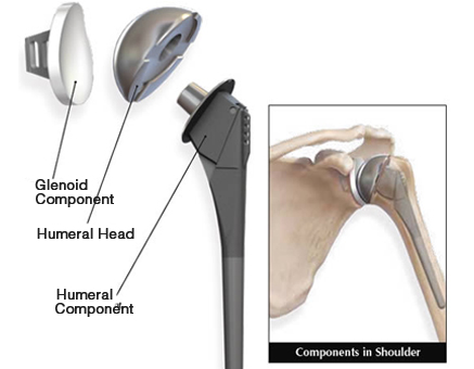 shoulder replacement surgery in faridabad